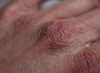 איך מטפלים ביובש בידיים?